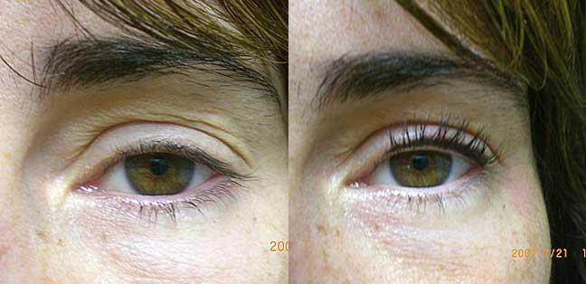 How Eyelash Perming Works