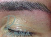 Eyebrow Correction Repair