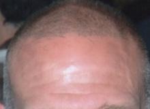 Scalpmicropigmentation