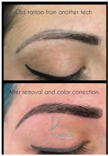 Permanent Makeup Correction And Removal Pigmenta